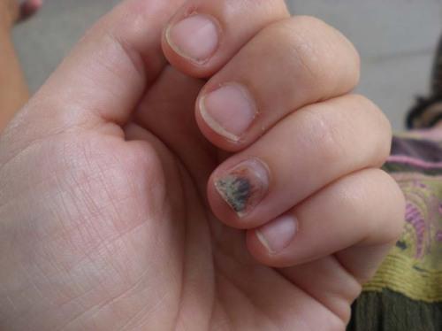 healing fingernail