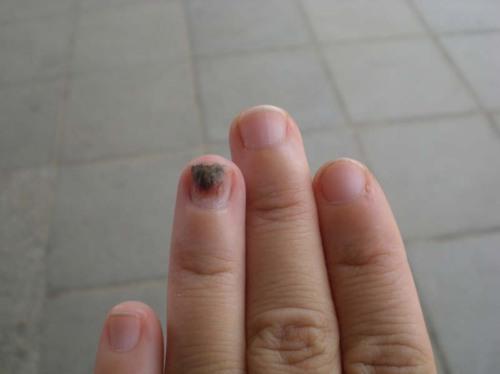 healing nail